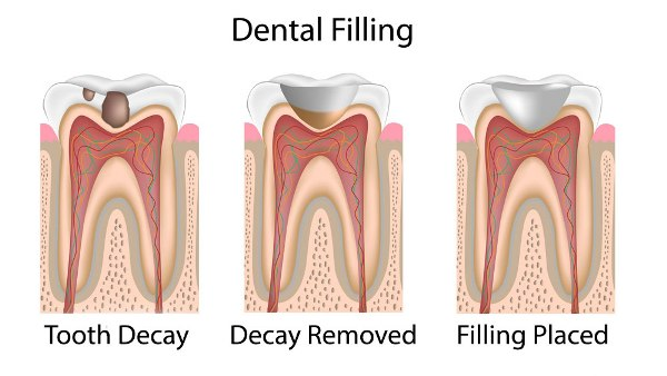 How Long Does it Take to Fill a Cavity - 99Science